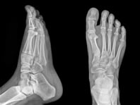 Foot and Ankle X-Rays | Upper West Side