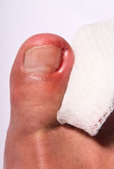 Ingrown Toenails Treatment | Toenail Fungus Treatment | PathoLase PinPointe FootLaser Treatment | Upper West Side
